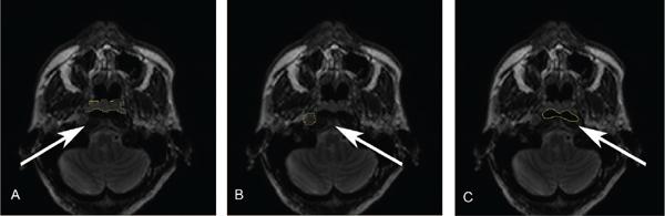 Current medical imaging reviews benthamscience liangliang chen yufeng ye hanwei chen shihui chen jinzhao jiang guo dan and bingsheng huang doi 1021741573405614666171205105236 fandeluxe Choice Image