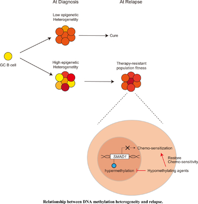 Epigenetic Mechanisms of Therapy Resistance in Diffuse Large B Cell Lymphoma (DLBCL)