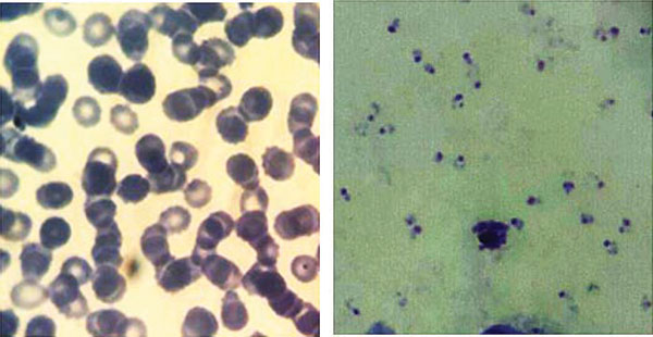 Delayed Hemolytic Anemia after Treatment with Artesunate: Case