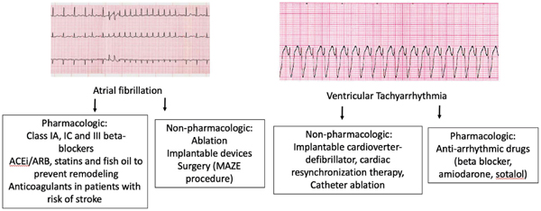 Atrial Fibrillation and Ventricular Tachyarrhythmias: Advancements for Better Outcomes