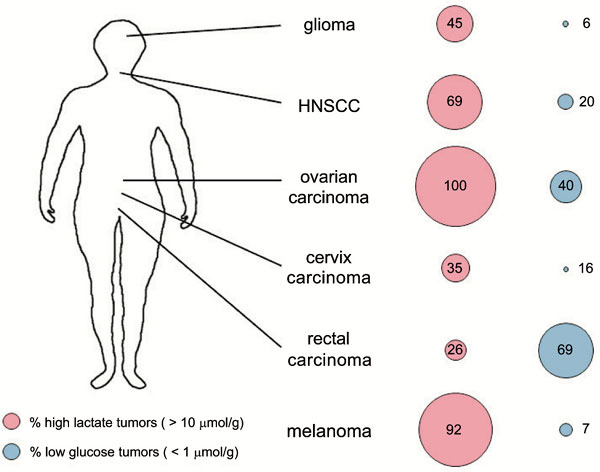 Immunological and Translational Aspects of Glycolytic Metabolism in Various Human Tumor Entities