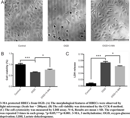 Autophagy Inhibition Preserves Tight Junction of Human Cerebral Microvascular Endothelium Under Oxygen Glucose Deprivation