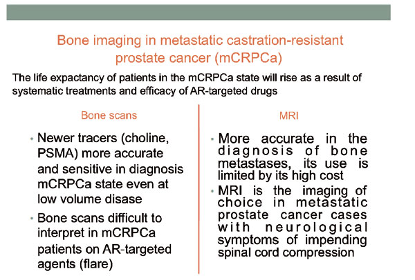 metastatic prostate cancer diagnosis and treatment