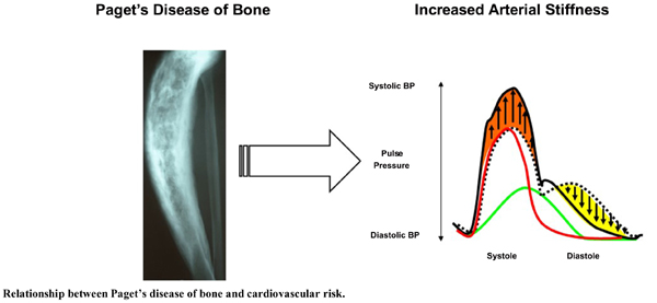 Paget's Disease of Bone and Cardiovascular Risk: A Pilot Study