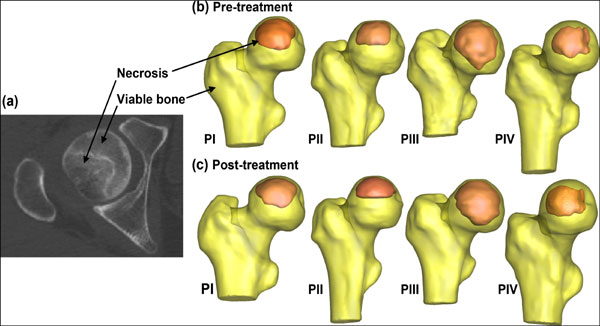 Mechanical Evaluation of Osteonecrosis of Femoral Head Pre and Post-Medical Treatment: Patient-Specific Computations