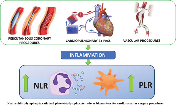 Neutrophil-to-lymphocyte Ratio and Platelet-to-lymphocyte Ratio as Biomarkers for Cardiovascular Surgery Procedures: A Literature Review