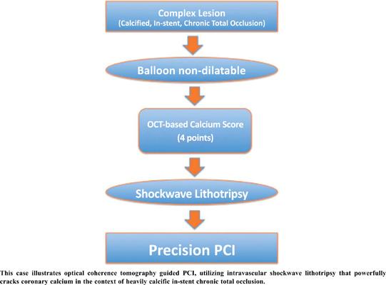 Precision Percutaneous Coronary Intervention of a Complex Lesion